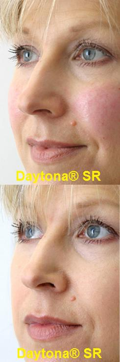 SR_-_Before_and_After_2.27284608_std